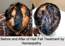 Homeopathic Treatment for Hair Fall