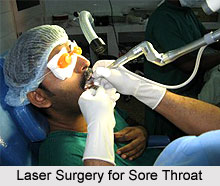 Laser Surgery for Sore Throat