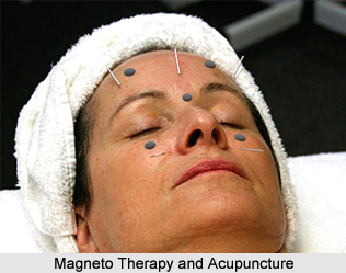 Magneto Therapy and Acupuncture