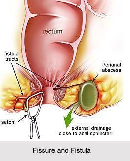 Fissure and Fistula