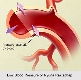 Low Blood Pressure or Nyuna Raktachap