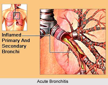 Yoga for Bronchitis, Yoga and Health
