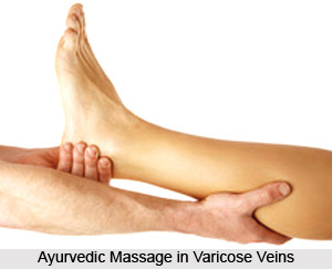 Ayurvedic Massage in Varicose Veins