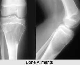 Bone Ailments