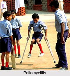 Poliomyelitis or  Balapakshaghata