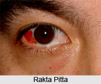Haemorrhage or Rakta Pitta