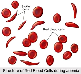 Natural Remedy for Anaemia, Indian Naturopathy