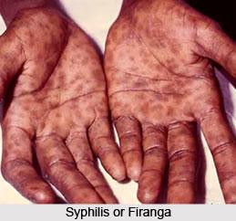 Syphilis or Firanga