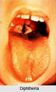 Diphtheria or Rohini