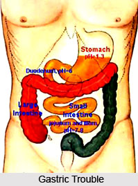 Types of Gastric Trouble