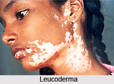 Leucoderma