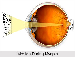 Myopia or Dristi Dosha