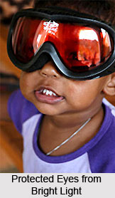 Trachoma or Pothaki