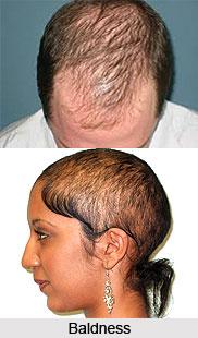 Baldness or Khalitya