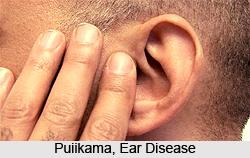Puiikama, Ear Disease