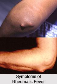 Rheumatic Fever or Aamavata Jwara