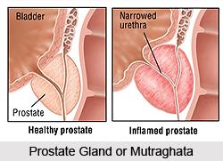 Enlargement of the Prostate Gland or Mutraghata