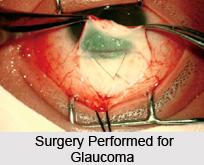 Treatment of Glaucoma