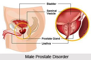 Male Disorders, Naturopathy