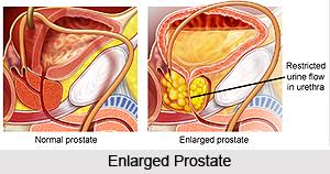 Symptoms in Prostate Disorders